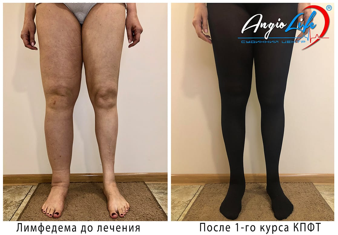 Lymphedema 2 Angiolife